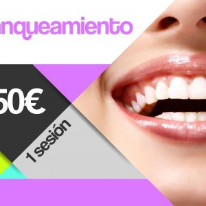 blanqueamiento dental santomera