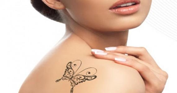 Eliminar tatuajes con Laser Neodimio YAG